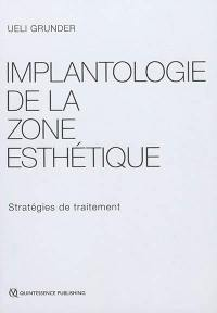 Implantologie de la zone esthétique : stratégies de traitement