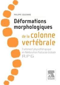 Déformations morphologiques de la colonne vertébrale : traitement physiothérapique en rééducation posturale globale, RPG